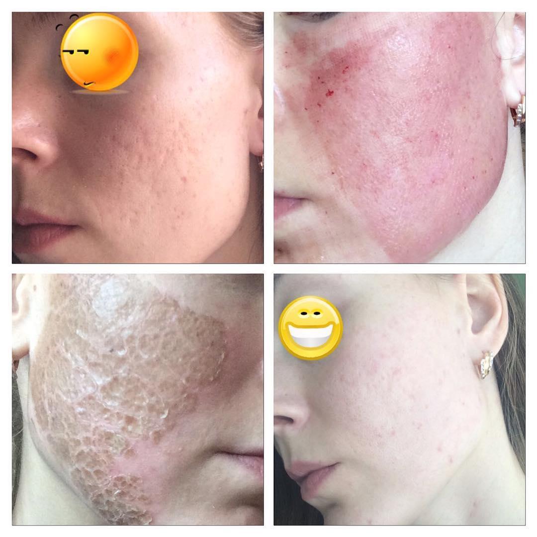 lechenie ugrevoy bolezni rezultat