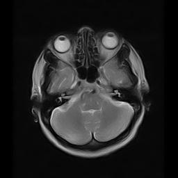magnitno rezonansnaya tomografiya golovy v Habarovske